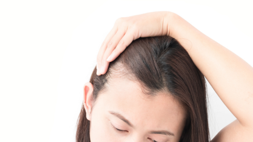 Ladies - Can HRT Pellets Cause Hair Thinning or Loss?